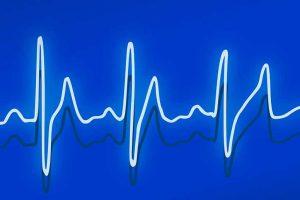 ekg-heartbeat-drawing-web-vs2